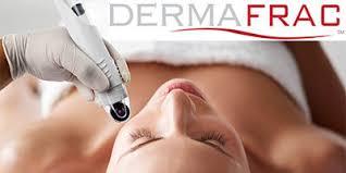 Dermafrac Dermal Infusion